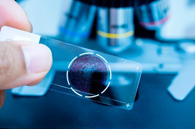 vidro de microscópio para patologia